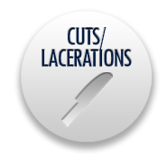 California Lawyers for Cuts and Lacerations Injuries
